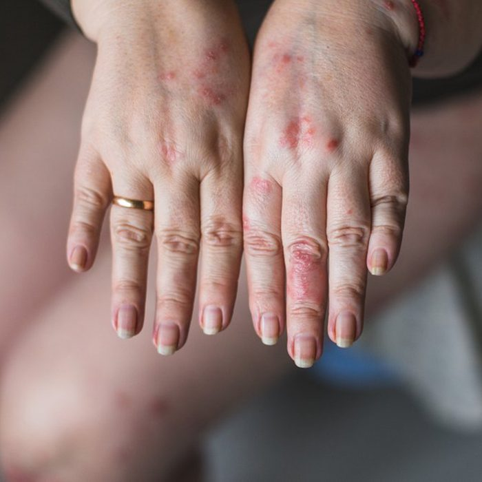 Woman showing off her hands that have inflammation