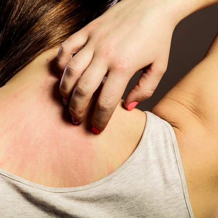 Closeup young woman scratching her itchy back with allergy rash