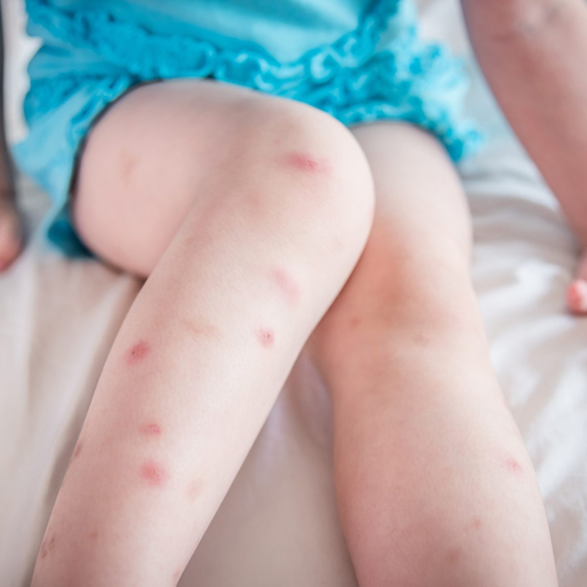 Many of mosquito bites sore and scar on little child legs who sitting on bed
