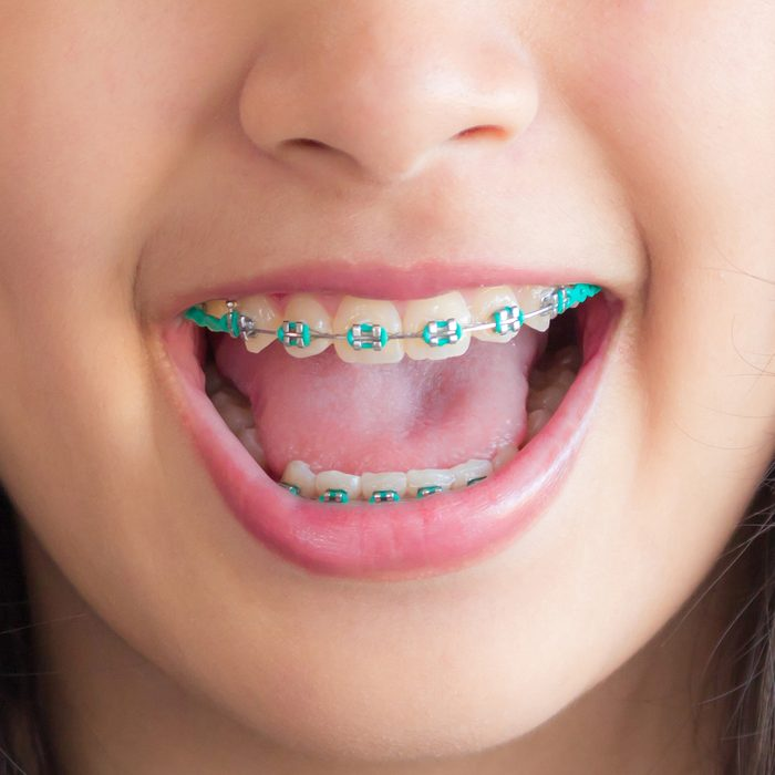 a smile mouth of asian girl and she has green braces