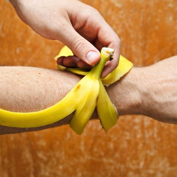 Banan Peel Misquito Bite Hack
